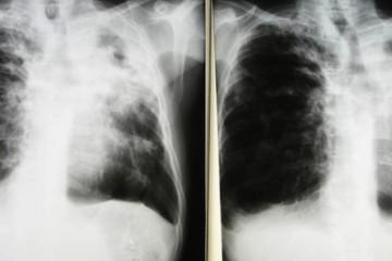 150608-tuberculosis-filer-5p_30563393e53cee3488dc4da21ffe01ef.nbcnews-fp-1240-520