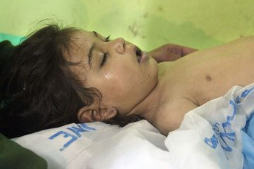 gty-syria-chemical-child-ps-170404_4x3_992